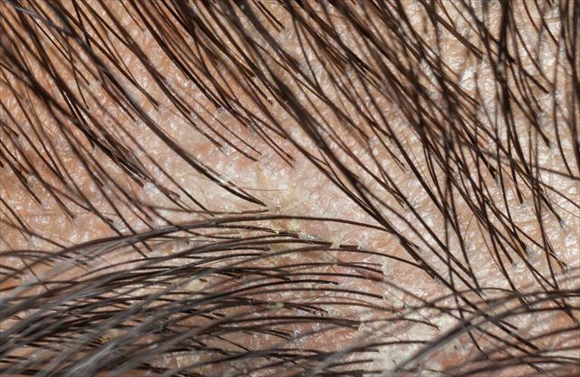 毛穴づまりを起こした頭皮の画像