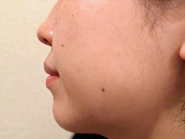 1ヶ月ローヤルゼリーもっちりジェルホワイトを使った女性の肌の画像