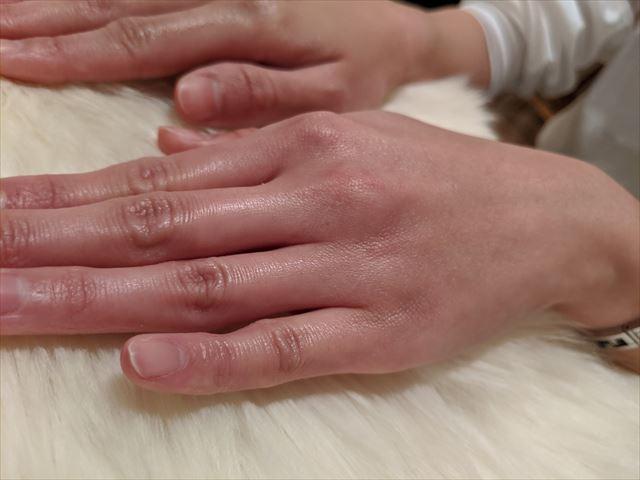 HANAオーガニックで保湿した肌の画像