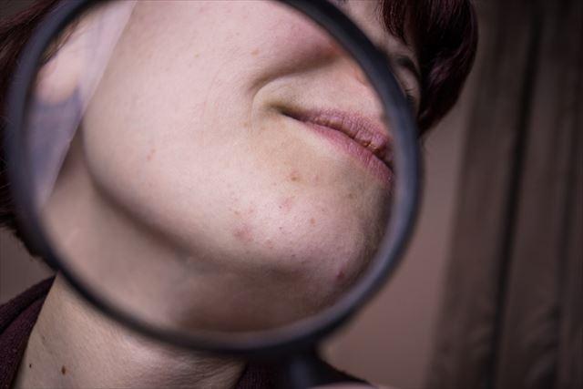 拡大鏡で肌を写した画像