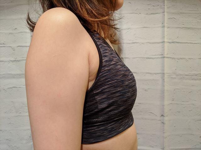 セルノートを使う前の横胸の画像